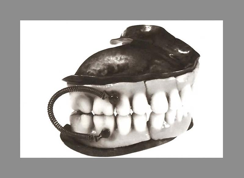Dentadura completa com dentes de porcelana.