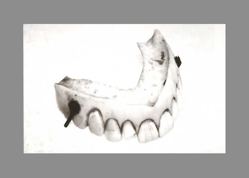Dentadura utilizadas entre 1840 e 1880.