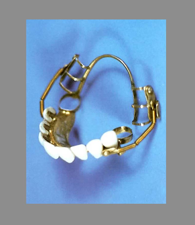 Imagem de prótese de porcelana, foi moda em Paris no século XIX.