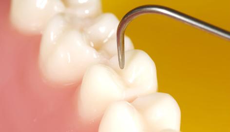 Selante: o dente blindado  contra o perigo da doença cárie